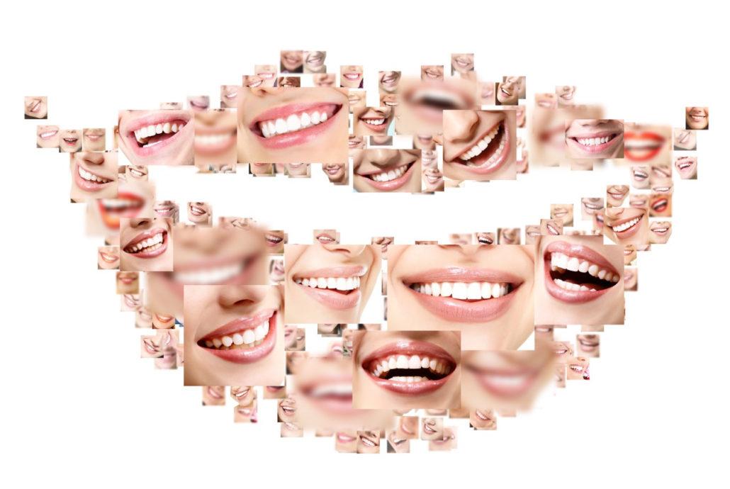 Cosmetic Dentistry Smile Dental Care Dentist In Scotts Valley And Santa Cruz